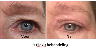Plexr Soft Surgery Huidcentrum Medic Skincare